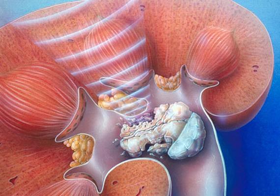 A leggyakoribb terápia a kövek szétrobbantása, amikor egy testen kívüli lökéshullám által elérik, hogy a kő apróbb darabokra essen szét, kimozduljon a húgyvezeték felé, és a vizelettel együtt távozzon. A további gyógyulásért, illetve a kisebb kövek távozásáért sokat tehetsz, ha növeled a napi folyadákbevitelt, nem viszed túlzásba a C-vitamin-fogyasztást, sem pedig a kalciumét.