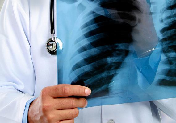 Az influenza egyik legveszélyesebb szövődménye lehet a tüdőgyulladás, mely annál veszélyesebb, minél kiterjedtebb. Amellett, hogy rontja a légzésfunkciót, komoly lázzal is járhat, mely jelentős mértékben megterheli a szervezetet.