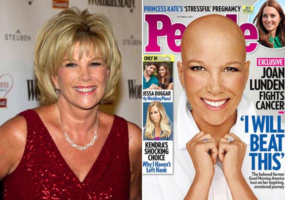 Joan Lunden televíziós újságírónál, a Good Morning America műsorvezetőjénél 2014 júniusában diagnosztizáltak tripla negatív emlőrákot. A jobb oldali címlap ugyanazon év októberében készült róla. Tettével inspirációt szeretett volna nyújtani a hasonló cipőben járó emberek számára.