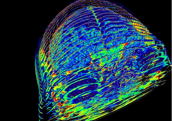 A CT-vel készült képen az emberi agy és szem 3D-s rekonstrukcióját láthatod.