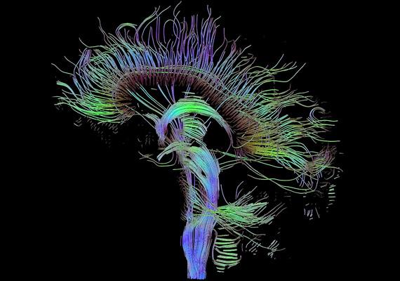 A képen az agy idegi kapcsolatainak traktográfia segítségével, úgynevezett diffúziós tenzor képalkotással - DTI-vel - készült rekonstukcióját láthatod. Az U-alakú szálak a kérgestestet - corpus callosumot - mutatják, melyek a két féltekét kötik össze egymással.