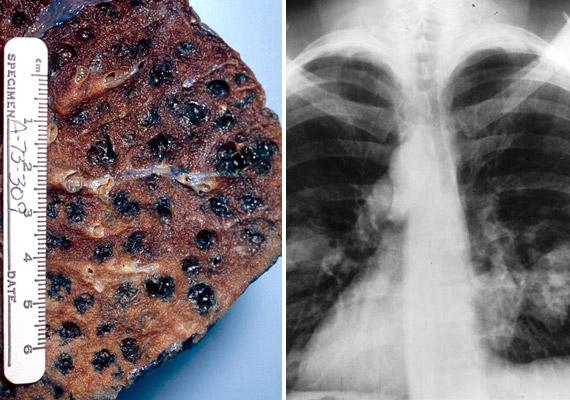 A tüdőrák hazánkban mindkét nem esetében vezeti a rákhalálozási listát. A betegség kialakulása szempontjából talán a legkomolyabb rizikófaktor a dohányzás - a bal oldali képen cigaretta okozta szénfoltokat láthatsz a tüdő szövetén, a jobb oldalin pedig a röntgenképen látható, daganat okozta árnyékokat. A betegség tüneteiről korábbi cikkünkben olvashatsz.