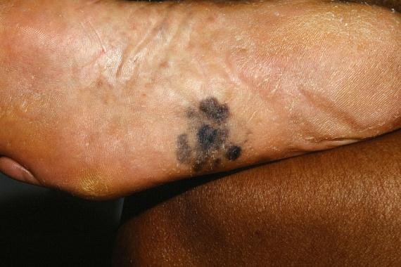Ha nem veszed észre időben, a talpon jelen lévő melanoma folyamatosan növekszik majd, ha pedig a rákos sejtek a bőr alsóbb rétegeibe is behatolnak, a következmények egyre csak súlyosbodhatnak.