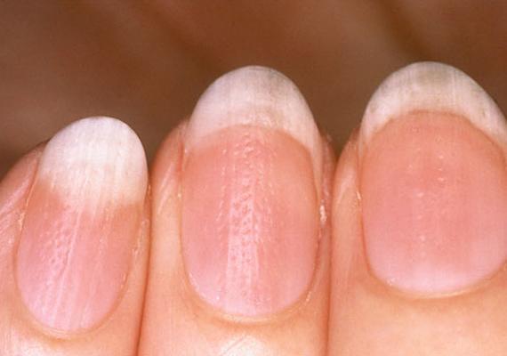 A gödröcskés köröm hátterében többnyire valamilyen bőrgyógyászati probléma, például pikkelysömör vagy ekcéma áll. Érdemes felkeresni vele a szakorvost, főleg, ha a hajad is hullik.