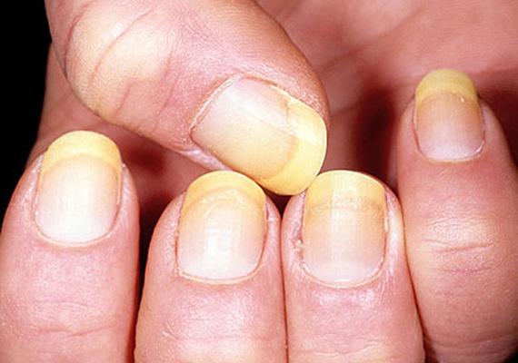A sárgás elszíneződéseket okozhatja például huzamosabb ideig tartó körömlakkhasználat, ha ezt tapasztalod, egy darabig hagyd pihenni a körmöd. Amennyiben lenő, nincs probléma. Ha a sárgás szín sötétbarnás árnyalatot vesz fel, és nem nő le, gomba lehet a probléma forrása. Patikai gombaölő szerek segíthetnek ez esetben.