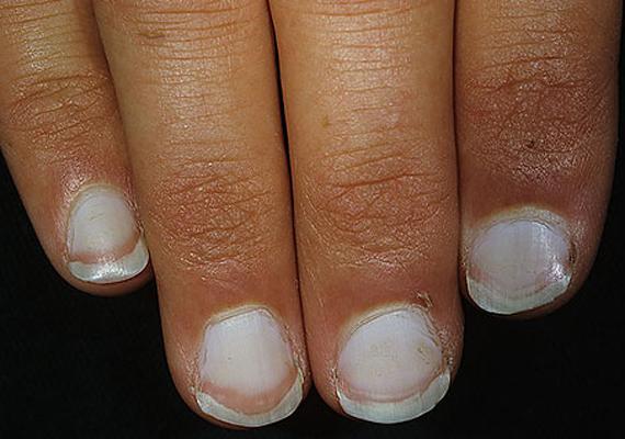 Ha a körömlemez kifehéredik, a felsőbb részeken viszont sötétebb marad, az többnyire májbetegségekről árulkodik, például hepatitiszről. A képen látható kéz ujjai is sárgás színűek, ez újabb jele a májproblémáknak.