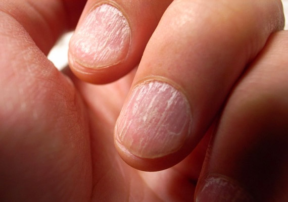 A töredező körmök komoly hiánybetegséget jeleznek. Leggyakrabban vas-, illetve kalciumhiányra hívják fel a figyelmet. Tudj meg többet arról, mit kell ilyenkor tenni!