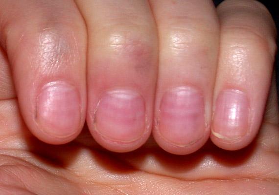 Ha a körmöd már nem rózsaszín, hanem inkább vöröses színben játszik, az valószínűleg magas vérnyomásra utal. Amennyiben gyakran szenvedsz fejfájástól, szédüléstől, szinte biztosra veheted, hogy ez a baj. Tudj meg többet a betegség kezeléséről!