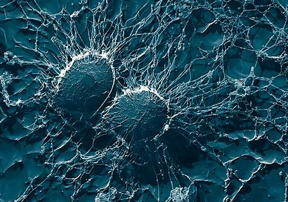 A természetben igen gyakori Staphylococcus baktériumfaj számára az emberi bőr és nyálkahártya remek menedéket jelent.