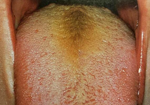 A megvastagodott lepedék nem csak fehéres-szürkés, de sárgás színű is lehet, ami szintén utalhat fertőzésre, de a máj, illetve az epehólyag zavarára is. Akár zöldes is lehet a váladék, ha felső légúti gyulladás áll a háttérben - például a melléküregek váladéka visszaszivárog a garaton -, emellett jellegzetes tünete lehet a fogak gyulladásának, ha valaki csak a nyelv egyik oldalán tapasztalja a jelenséget.