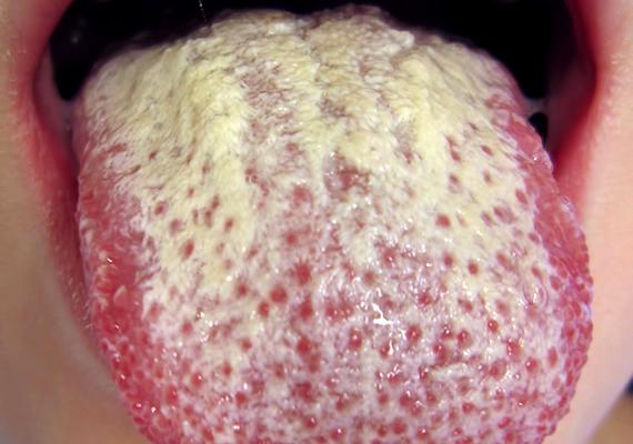 Vastag, fehér lepedék lehet az egyik jele annak is, ha a szervezetben a Candida albicans nevű gomba szaporodott el túlzott mértékben. Utóbbinak számos oka lehet, a stressztől a nem megfelelő táplálkozáson át az antibiotikumos kezelés mellékhatásáig.