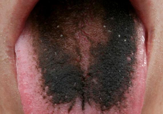 A képen látható, félelmetesnek tűnő jelenség az úgynevezett fekete nyelv vagy fekete szőrnyelv, ami nem lepedéket jelent, hanem a nyelv egy sajátos megbetegedését takarja, melynek során a nyelvszemölcsök megnagyobbodnak és elszíneződnek, mivel a nyelv felszínének bizonyos rétege túltermelődik, illetve lassabban lökődik le. Ebben az esetben sem tisztázottak az okok, a jelenség azonban összefügghet gyógyszeres kezeléssel, vérszegénységgel, de a dohányzással is.