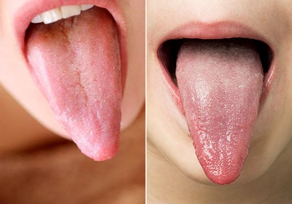 A nyelven jelen lévő lepedék alapesetben vékony, filmszerű, fehéres réteget képez, emellett ez egyénenként is változhat, van, akinél például alig látható.