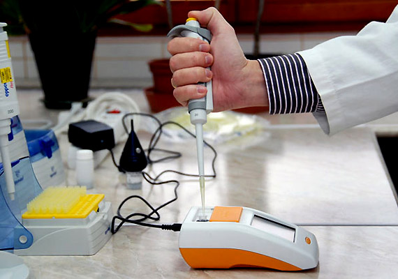 2011 novemberében Németországban, a világ legnagyobb szakvásárán mutatták be a CoagS INR-mérő készüléket, mely a Diagon Kft. által kifejlesztett magyar találmány. Az eszköz segítségével a trombózison átesett, véralvadásgátlót szedő betegek a háziorvosnál, illetve akár otthon is ellenőrizhetik a vérzékenységet jelző úgynevezett INR-szintet, amire a gyógyszeradagolás meghatározására van szükség.