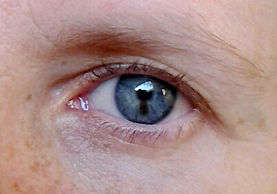 A nyálkahártya érintettsége a szem esetében is érvényes, ugyanakkor a szem más részein is megjelenhet a melanoma, akár az íriszen is, ahogy a képen is látható.