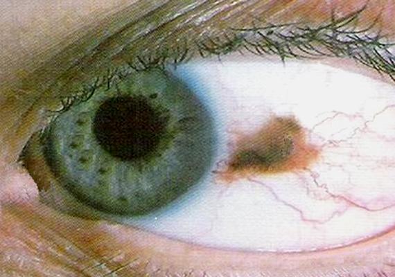 A melanoma nem feltétlenül látható a szem külső felszínén, ha azonban igen, nemcsak az íriszen, de a szemfehérjén is feltűnő lehet. A szemen megjelenő melanoma általában sötétbarna, lehet kisebb és nagyobb folt is, mely jellemzően egyenetlen felszínű.