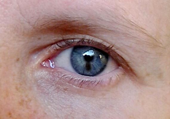 A szemgolyó daganatos megbetegedései között gyakorinak számít a melanoma, melynek megjelenését általában egy egyszerű szemészeti vizsgálat során is meg lehet állapítani. Ha bármilyen gyanús elváltozást észlelsz a szemeden, akár csak új, kicsi foltocskát is, mindenképpen menj el orvoshoz a biztonság kedvéért - a képen látható barna folt például kezdeti állapotban lévő melanoma.