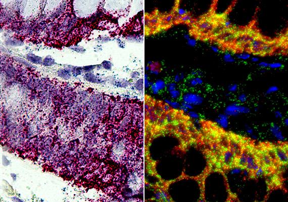 A képen RNS in situ hibridizáció látható. Ezzel az eljárással kimutathatóak a nukleinsav-szekvenciák a biológiai anyagban, a sejten belül. A mikroszkopikus képeken az emberi melanoma szövetmetszetét látod.