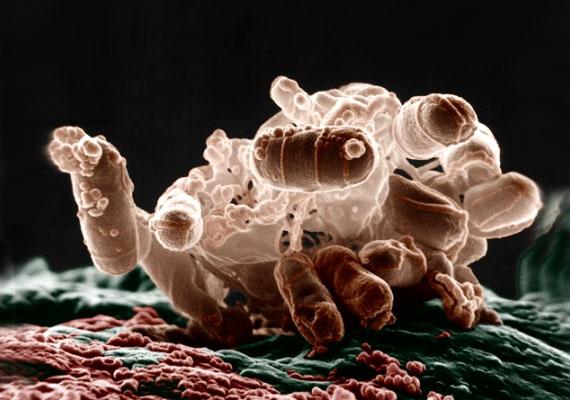 Az E.coli - Escherichia coli - baktérium normál körülmények között is előfordul a vastagbélben, ahol gyors osztódása révén kiszorítja a kórokozó baktériumokat. Ha azonban szennyezett ivóvízzel vagy fertőzött élelmiszerrel kerül a szervezetbe, hasmenést, hányást, bélgörcsöket okozhat.