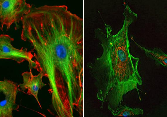 A képen az erek belső felszínét borító endothelsejteket láthatsz, melyek egyfelől biztosítják, hogy a vér ne alvadjon meg az érpályákban, másfelől az érfal sérülésének regenerációját segítik. A pókhálóra emlékeztető endothelsejtek sejtmagját a képen kék, a mikrofilamentumokat zöld, a mitokondriumokat piros színnel láthatod.