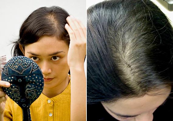 A női hajhullás okai és ellenszere - DR. IMMUN