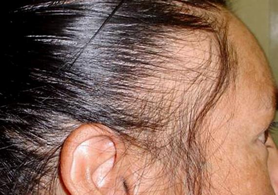 a haj alatti fején vörös foltok húzódnak le)