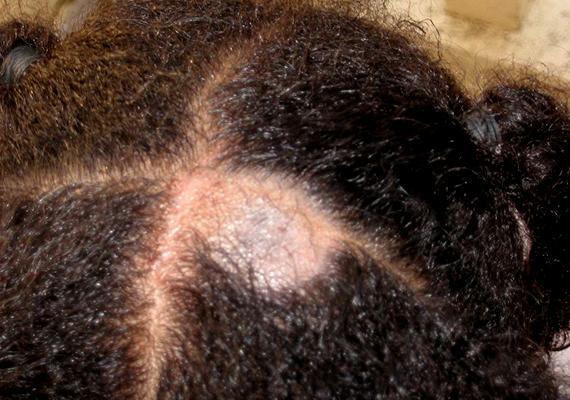 A képen az úgynevezett tinea capitis látható, egyfajta gombás eredetű hajhullás, mely jellegzetesen körkörös területet érint. Ilyenkor a kopasz folt megjelenésén túl jellemző a fejbőr kivörösödése, valamint a hámlás és a viszketés is. A problémával mindenképpen fordulj mielőbb orvoshoz.
