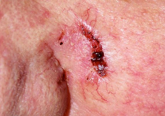 A bazálsejtes karcinóma a leggyakoribb bőrrákfajta, ám egyben a legnagyobb eséllyel gyógyítható is. Jellemzően az arcon és a karokon alakul ki, tünetei: nehezen gyógyuló seb, hólyagos, vörös folt, fénylő daganat.