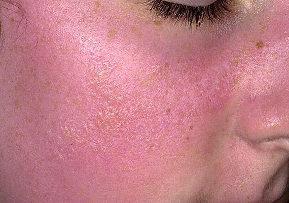 A napallergia legtöbbször apró, piros pontok formájában jelentkezik a bőrön, de csalánkiütés vagy nagyobb hólyagok is kialakulhatnak, melyek viszketnek, illetve égő érzést okoznak. Korábbi cikkünkben többet is megtudhatsz róla!
