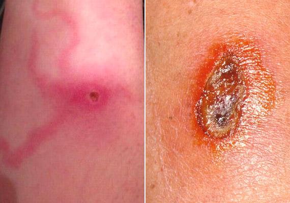 Ha azonban a csípés nagyobb kiterjedésű, elgennyesedik, keménnyé válik, esetleg elkékül, azonnal fordulj orvoshoz. Amennyiben a fenti fotókhoz hasonlót látsz magadon, joggal gyanakodhatsz, hogy mérges pók csípett meg.