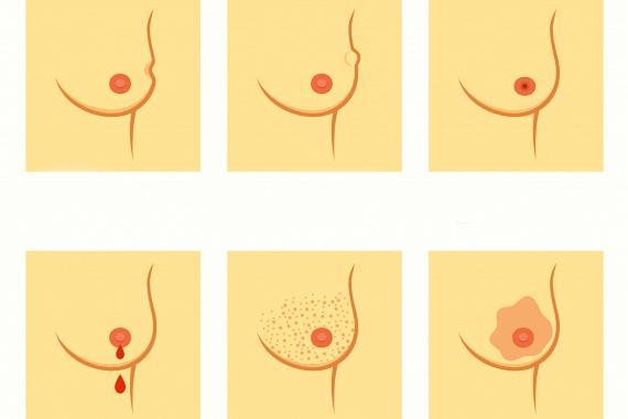 A mellráknak a kitapintott csomón kívül jellegzetes bőrtünetei is lehetnek, ahogy például a képeken is látszik, megjelenhet a mell felszínén horpadáshoz hasonló elváltozás, kitüremkedés, emellett a mell bőrfelszínének textúrája és színe is megváltozhat. Kattints ide, ha a női rákbetegségek további tüneteire is kíváncsi vagy!