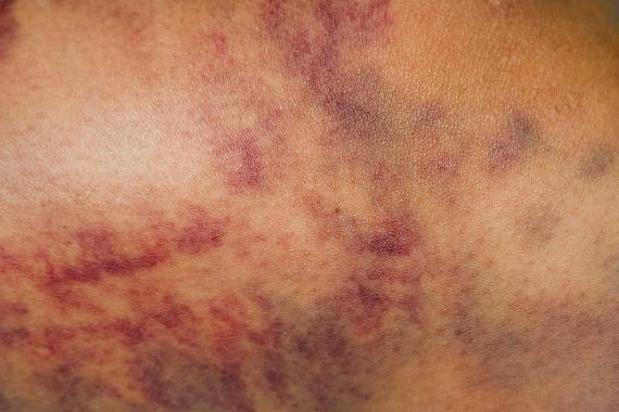 A véraláfutás teljesen hétköznapi jelenség is lehet, ha azonban nem tudod, mi okozza, egyre gyakoribbá és jellemzőbbé válik, és szokatlan helyeken is megjelenik - a kézen, az ujjakon, a combon -, miközben szinte biztosan tudod, hogy nem ütötted be semmidet, érdemes orvoshoz fordulni. Bár lehet, hogy csupán vérképzési zavar okozza, fontos tudni, hogy a leukémia egyik jele is lehet, a rákos sejtek ugyanis ez esetben kiszorítják a vérlemezkéket termelő sejteket, minek hatására gyengül a vér alvadási képessége.