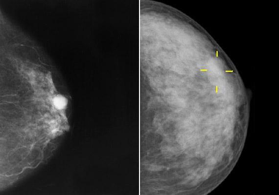Hazánkban minden évben öt-hatezer új mellrákos megbetegedést diagnosztizálnak. A fenti mammográfiai vizsgálat során készült képen jól látszik a daganatot jelző csomó. Annak érdekében, hogy időben felismerhesd az esetleges elváltozást, ajánlott néhány havonta mellönvizsgálatot végezned.