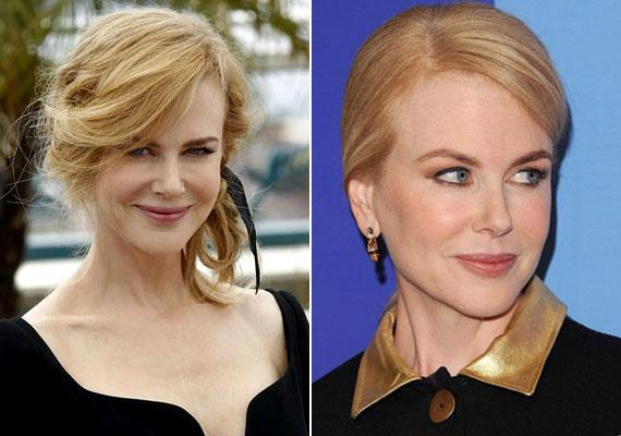 Nicole Kidman családjában nem ismeretlenek a daganatos megbetegedések: édesanyjánál még a nyolcvanas évek közepén diagnosztizáltak mellrákot, az Oscar-díjas színésznőnek pedig bőrrákja volt. Szerencsére mindketten sikeresen felgyógyultak.