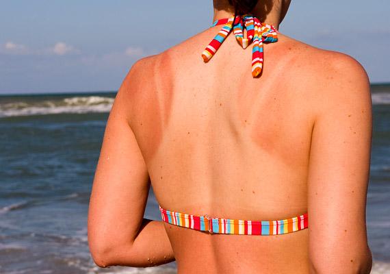 A többszöri napégés növeli a melanoma kockázatát - a napozás káros hatásai ugyanis összeadódnak. A megelőzés szempontjából lényeges, hogy 11-15 óra között lehetőleg ne tartózkodj a napon, használj fényvédőkrémet és tegyél fel kalapot. Kíváncsi vagy a bőrgyógyász véleményére? Kattints!