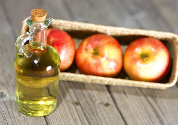 Az ecet elpusztítja a baktériumokat, gombákat. Kétféle formában alkalmazhatod: vagy csepegtesd vattapamacsra, és az előzőleg megtisztított körmödet ecseteld vele, vagy önts 2 liter langyos vízhez 2 deciliter 20%-os ecetet - lehet almaecet is -, és áztasd benne a lábadat körülbelül naponta 20 percig.