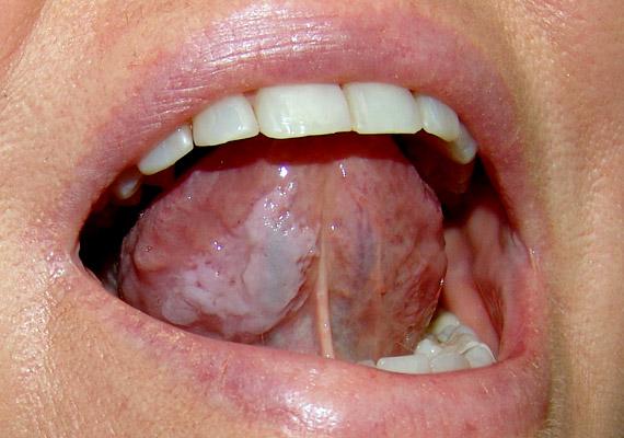 A leukoplákia fehér lepedékkel üzenő tünetei a nyelven - akár annak alsó részén - is megjelenhetnek. Bármilyen ártalmatlannak tűnik a fenti elváltozás, kellő odafigyelés hiányában szájrák alakulhat ki belőle.