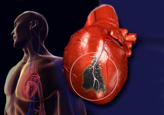 A légszennyezés és a szálló por a szervezetbe kerülve gyulladásos folyamatokat indít el a légzőszervrendszerben és keringési rendszerben egyaránt, vérrögösödést válthat ki. Egyúttal nehezíti az oxigénfelvételt. Ha pedig a szívizom nem kap elég oxigént, sejtek károsodnak, szív- és érrendszeri problémák alakulnak ki - többek között számolni kell a szívroham megnövekedett kockázatával.
