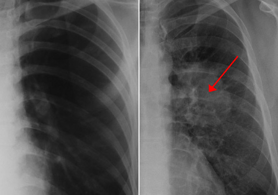A bal oldali képen egy egészséges tüdőről készült röntgenfelvételt láthatsz, míg a jobb oldalin a kis piros nyíl a tüdőrák okozta árnyékokra hívja fel a figyelmet. A szálló por felszívódva a tüdőben gyulladásos folyamatokat indít el, amelyek hosszú távon tüdőrákot okozhatnak. A rákhalálozási statisztikákat hazánkban évek óta a tüdőrák vezeti.