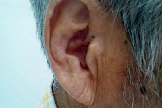 Bármilyen furcsán hangzik is, a fülcimpa, pontosabban egy azon található ránc, illetve rovátka akkor is jelezheti a szívbetegség kialakulásának valószínűségét, ha arra más jel jelenleg még nem is utal. A fülcimpán található függőleges ránc, mely a fülkagyló nyílásától a cimpa aljáig tart - az összefüggést felfedező kutató után Frank-jelnek is nevezik -, lappangó koszorúér-betegségre, illetve cukorbetegségre is utalhat.