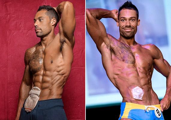 Blake Beckford 33 éves volt, amikor 2003-ban colitis ulcerosát - gyulladásos bélbetegséget - állapítottak meg nála. A betegség következtében tíz évvel később el kellett távolítani a teljes vastagbelét, és sztómát kapott. Bár az orvosok óva intették az intenzív testmozgástól, nem adta fel álmát, és visszament az edőterembe - jelenleg személyi edzőként dolgozik, és fitneszversenyt is nyert már.