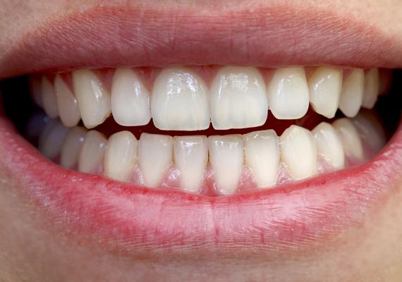 A fogak romlása általában nem a legelső jelek között észlelhető, de ha érzékenyek a fogaid és sérült a fogzománc, gondolnod kell a kalciumhiányra mint lehetséges kiváltó okra.