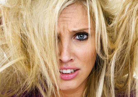 Bármit kensz rá, fénytelen, száraz és töredezett marad a hajad? Ezek a kalciumhiány jelei is lehetnek, ezért kezdj el rá gyanakodni.