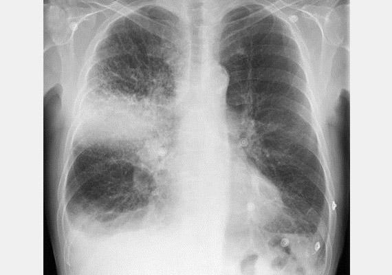 A fenti röntgenképen egyértelműen kirajzolódik a tüdő jobb felső lebenyében kialakult rákos elváltozás.