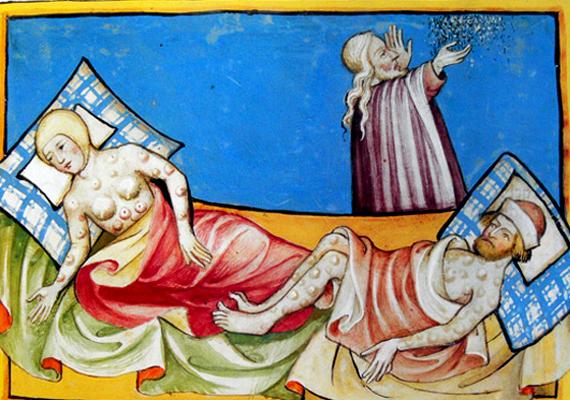 A fekete halálként is ismert pestis baktériuma okozta járvány először 540 után szedte áldozatait Európában. A 14. században újra felütötte fejét, majd a 17. században is pusztított kisebb-nagyobb hullámokban. Ez idő alatt Európa lakosságának harmada pusztult el ebben a kórban. A képen a bubópestis nevű fajtája látható, amely akár tojásnagyságú duzzanatokat is okozhat a testen. Tudj meg többet a betegségről!