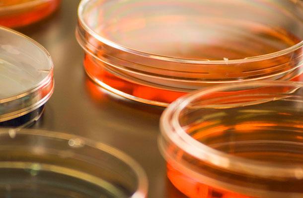 vizelet minta tárolása krónikus prosztatával melyek a gyertyák jobbak