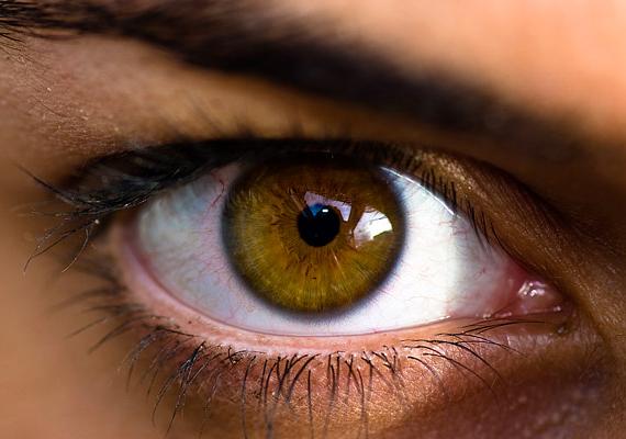 Ha véreres és száraz a szemed, az könnyebben vezethet fertőzésekhez, illetve gyulladások kialakulásához, hátterében pedig gyakran szintén az elégtelen folyadékfogyasztás húzódik meg.