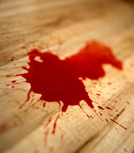 Vér                         Horrorisztikus és sokak számára gyomorforgató is az az álom, melyben vér is szerepel, de hiába ilyen elborzasztó, az álomfejtők szerint a vér az álomban nem jelent rosszat. Ha vérrel álmodsz, az energiát, vitalitást, sikert jelent.