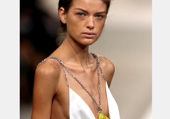 Liusel Ramos uruguayi modell volt - 2006-ban, 22 évesen hunyt el, anorexia okozta szívelégtelenségben. Az 175 centis testmagasságához 44 kilót mutatott a mérleg.