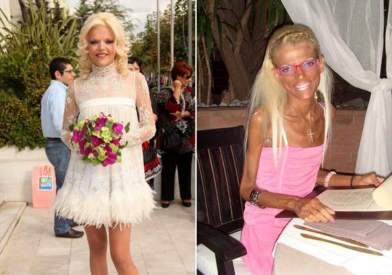 Nana Karagianni valamikori görög modell a bal oldali esküvői fotón még gyönyörű nő volt, mára azonban csontsovánnyá fogyott. Mint nyilatkozta, boldog attól, hogy férje ezekben a nehéz időkben is mellette áll.